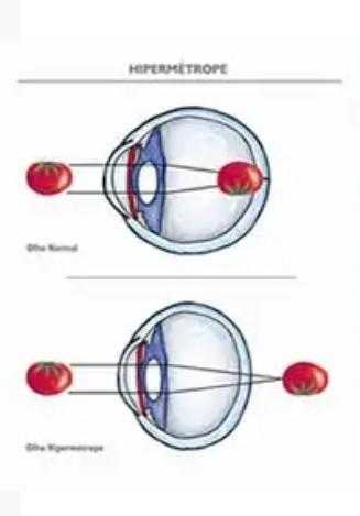 creați test de viziune miopia tratamentului cu un singur ochi